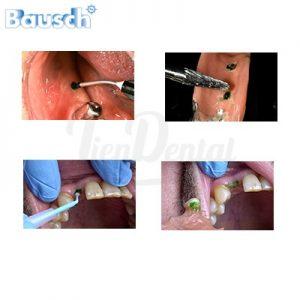 Bausch-Bio-Ink-Flow-Indicador-del-punto-de-interferencia-TienDental