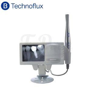 Cámara-Intraoral-con-monitor-y-negatoscopio-Technoflux-TienDental-equipamiento-odontológico