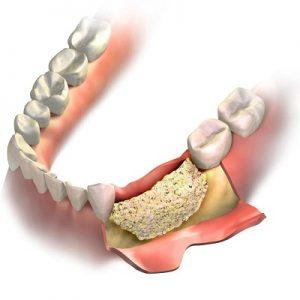 Material de relleno óseo