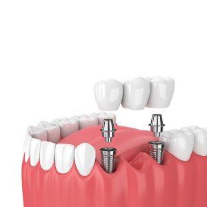 Aditamentos Dentales