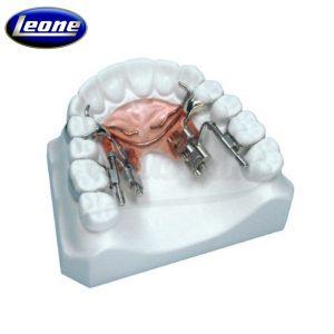 Distalizador-Fast-Back-Leone-TienDental-material-odontológico-ortodoncia