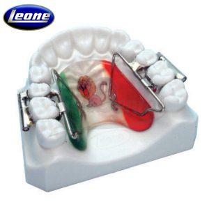 Distalizador-Rápido-de-los-Molares-First-Class-Leone-TienDental-material-odontológico-ortodoncia