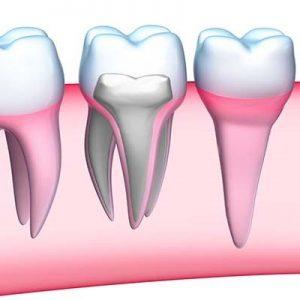 Endodoncia obturación