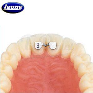 Retenedores-Central-Central-Superior-Leone-TienDental-material-ortodoncia-depósito-dental