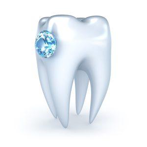 Joyería Dental